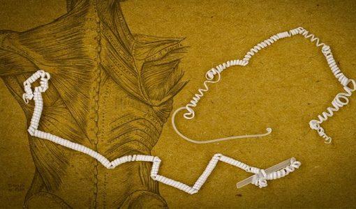 عضله مصنوعی - شرکت دانش بنیان عصررایانه